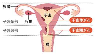 子宮 癌 症状